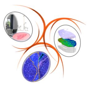 H2i   Hépatocarcinome, immunité et inflammation