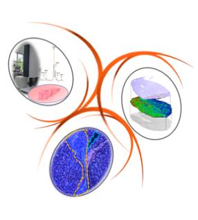 H2i – Hépatocarcinome, immunité et inflammation